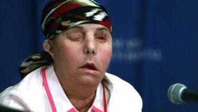 Photo of Realizan segundo transplante de cara a una mujer atacada por exesposo