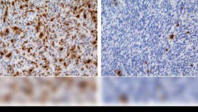 """Photo of Descubren cómo algunos tumores cerebrales consiguen """"esquivar"""" la quimioterapia"""